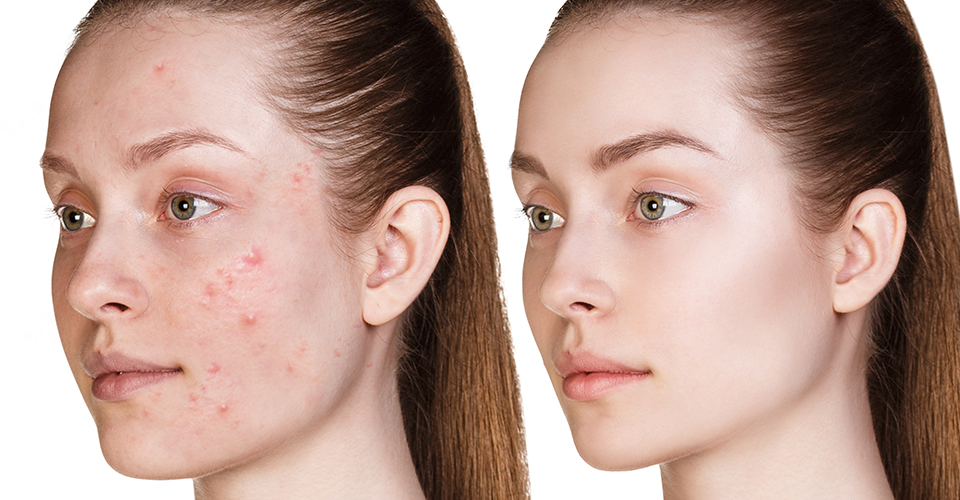 acne-control-banner-image