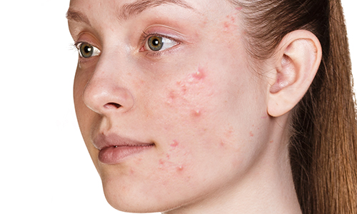acne skin condition image