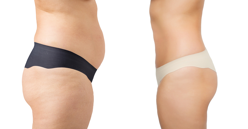 weight-loss-body-contouring-banner