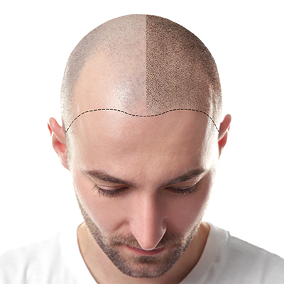 Hair Imitation Treatment